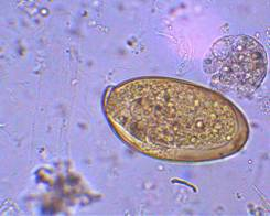 http://158.83.1.40/Buckelew/images/Fasciola%20hepatica%20embryonated%20egg%20capsule.jpg